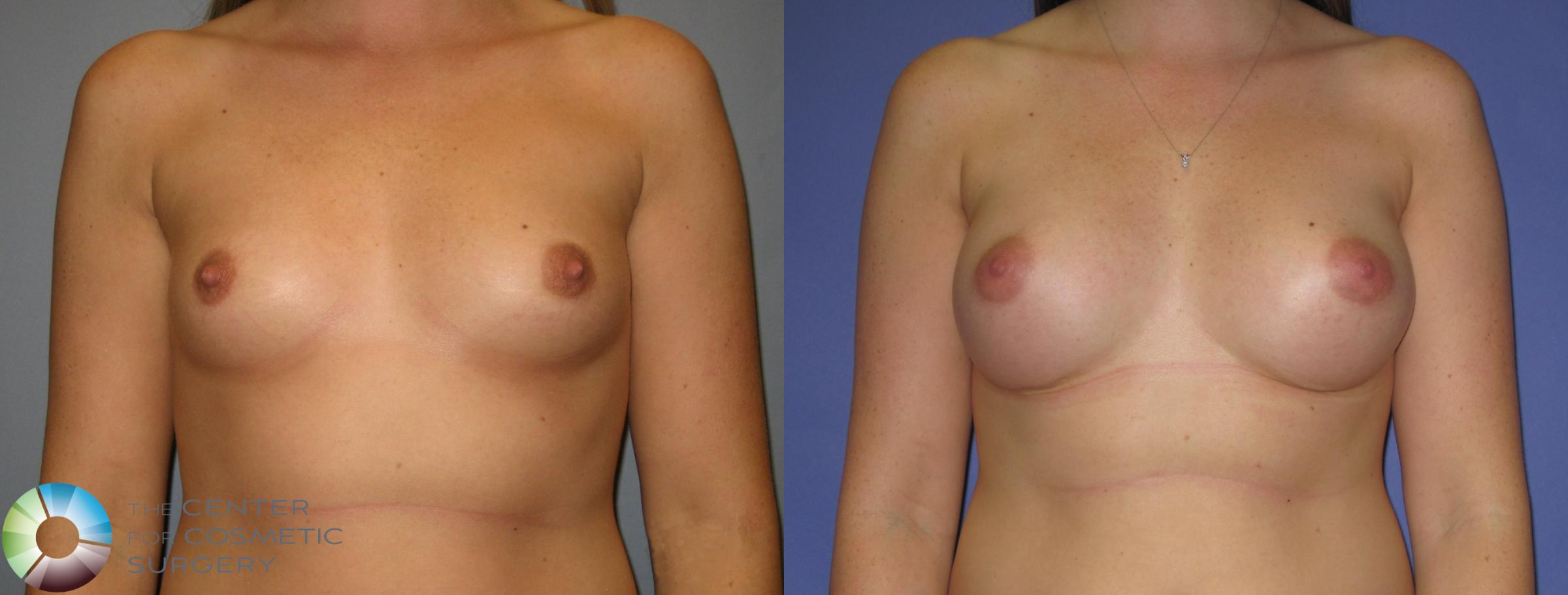 Breast Augmentation Case 372 Before & After View #1 | Golden, CO | The Center for Cosmetic Surgery