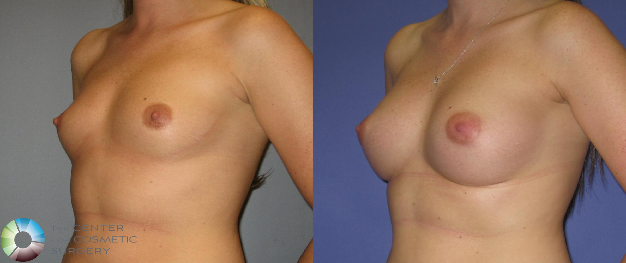 Breast Augmentation Case 372 Before & After View #2 | Golden, CO | The Center for Cosmetic Surgery