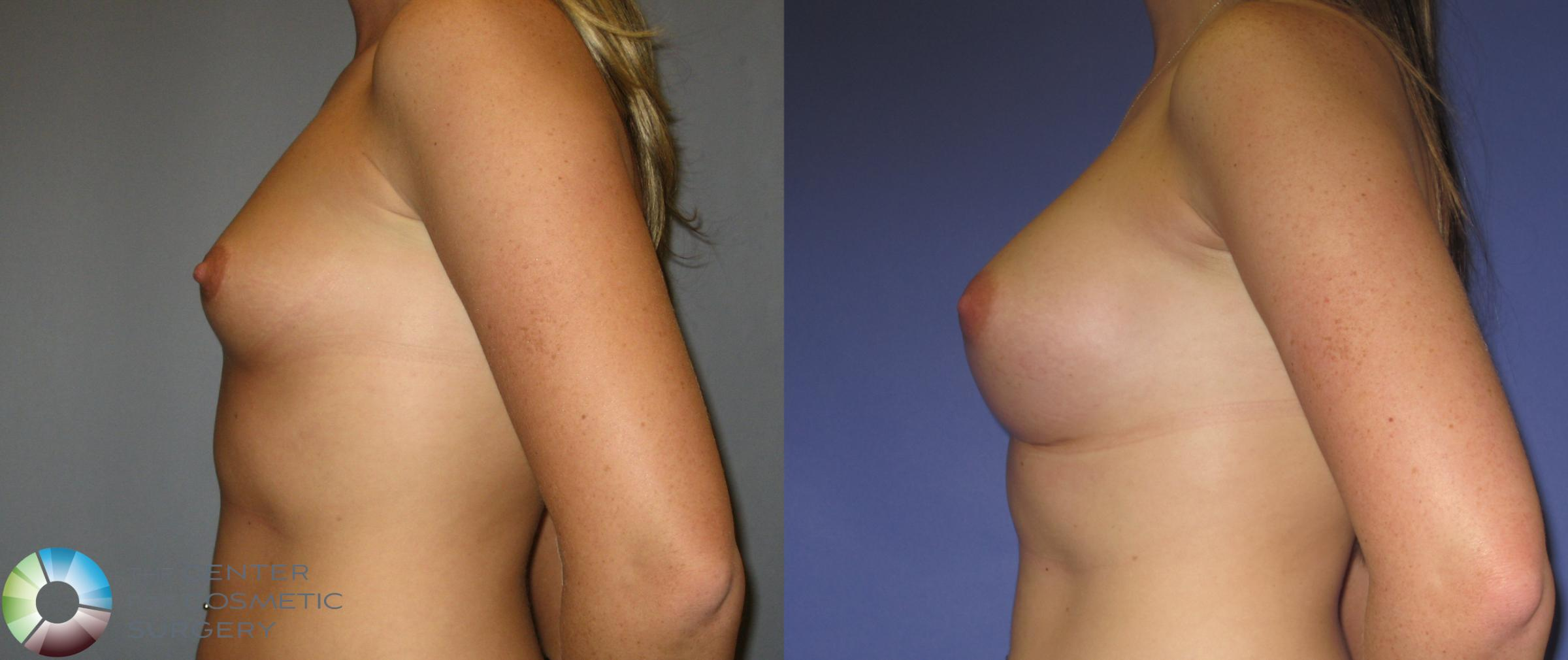 Breast Augmentation Case 372 Before & After View #3 | Golden, CO | The Center for Cosmetic Surgery