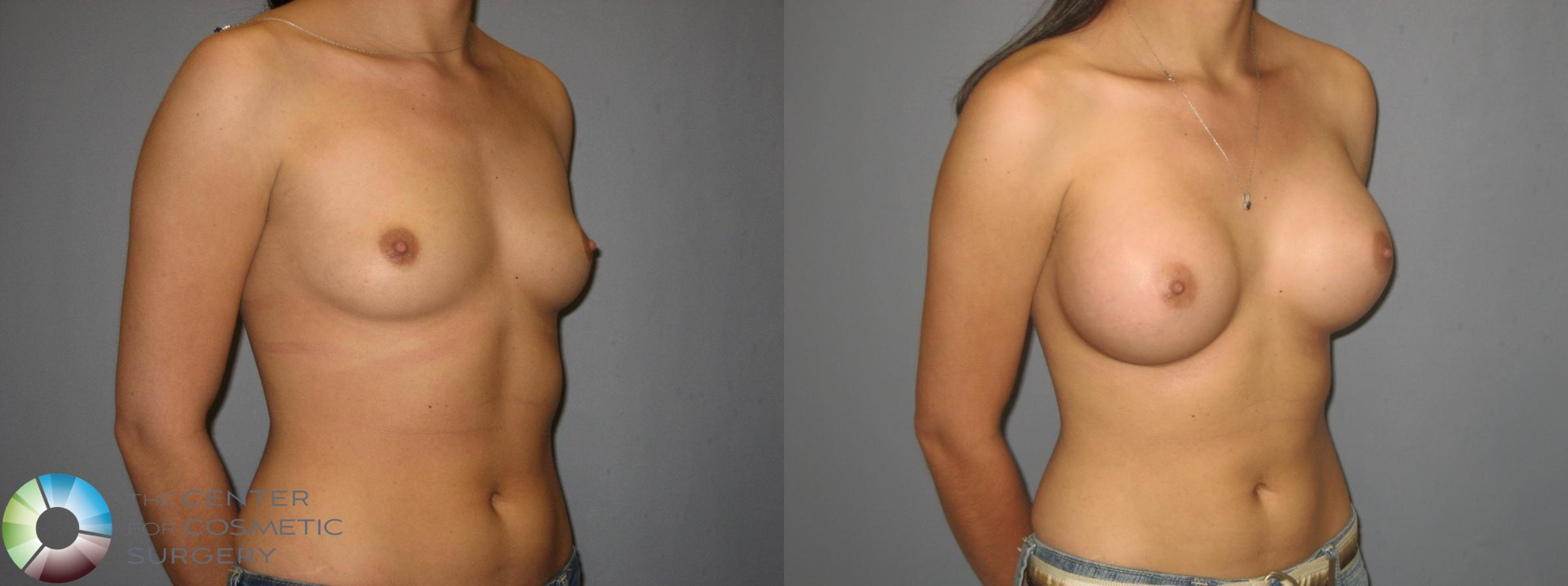 Breast Augmentation Case 379 Before & After View #1 | Golden, CO | The Center for Cosmetic Surgery