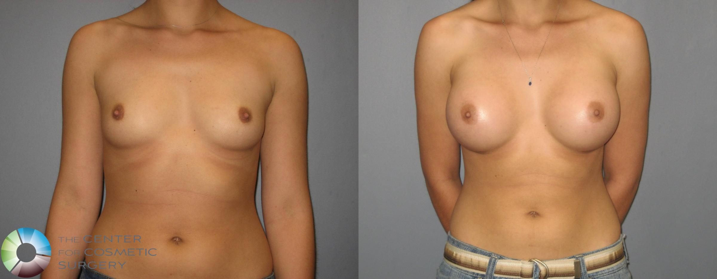 Breast Augmentation Case 379 Before & After View #2 | Golden, CO | The Center for Cosmetic Surgery