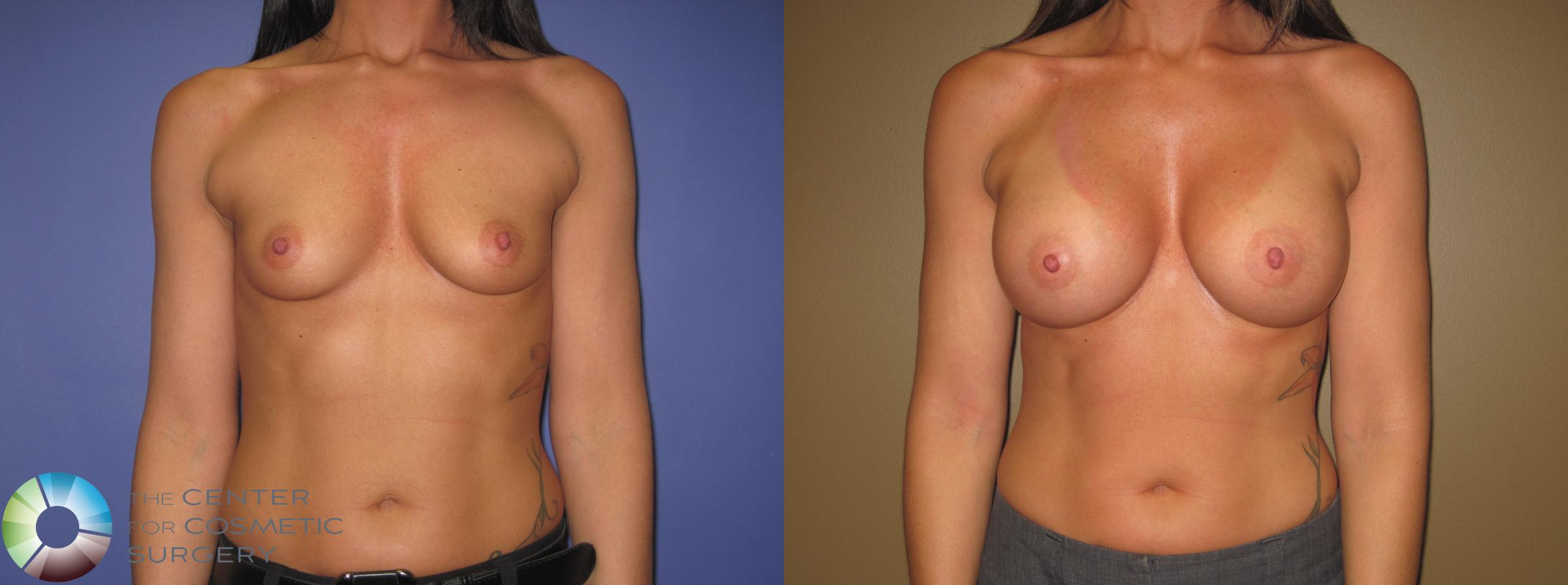 Breast Augmentation Case 410 Before & After View #1 | Golden, CO | The Center for Cosmetic Surgery