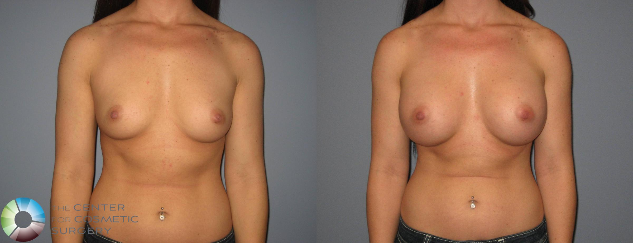 Breast Augmentation Case 411 Before & After View #1 | Golden, CO | The Center for Cosmetic Surgery