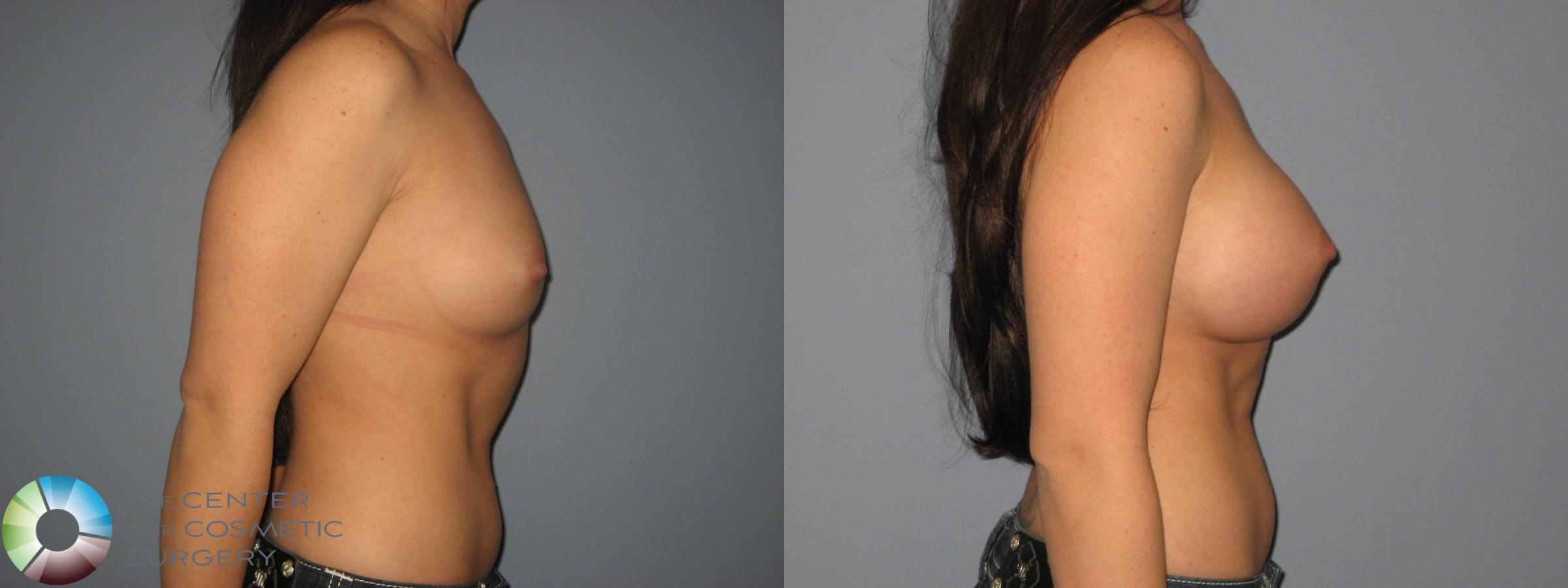 Breast Augmentation Case 411 Before & After View #2 | Golden, CO | The Center for Cosmetic Surgery
