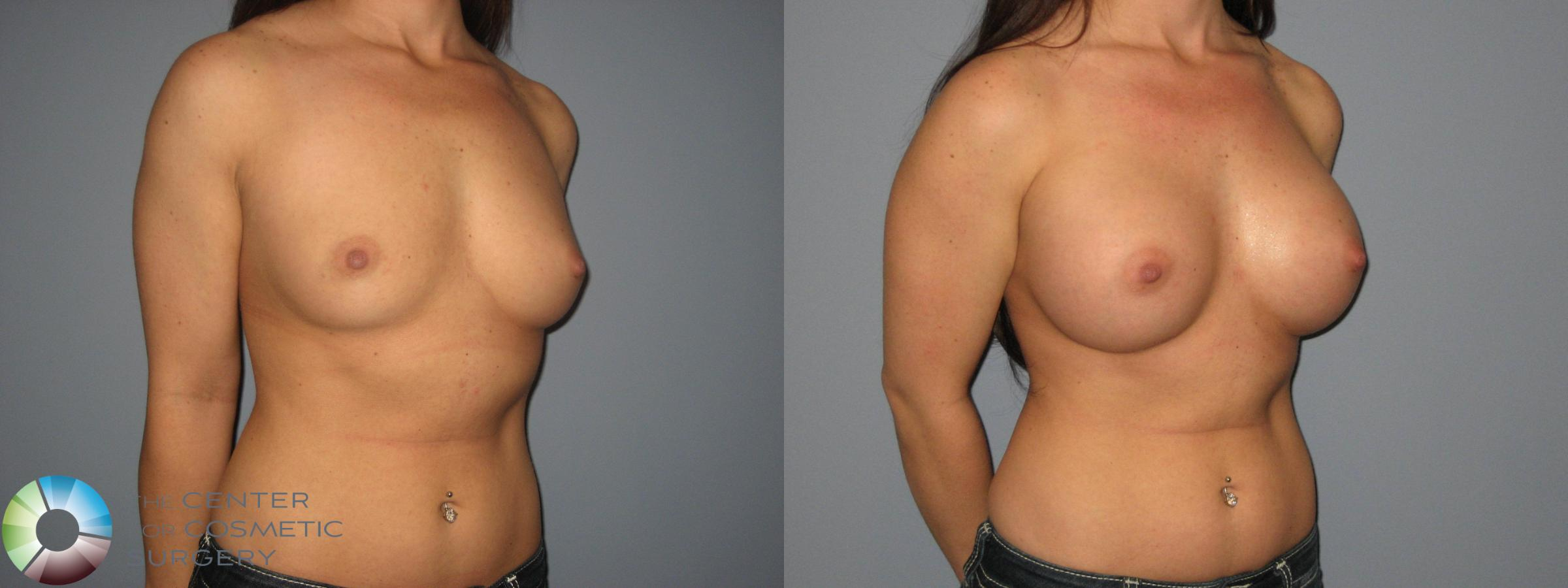 Breast Augmentation Case 411 Before & After View #3 | Golden, CO | The Center for Cosmetic Surgery