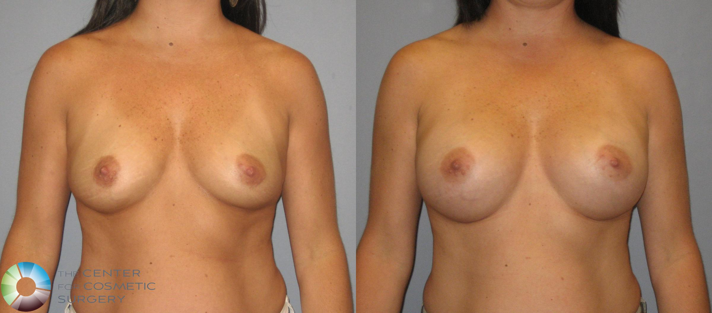 Breast Augmentation Case 419 Before & After View #1 | Golden, CO | The Center for Cosmetic Surgery