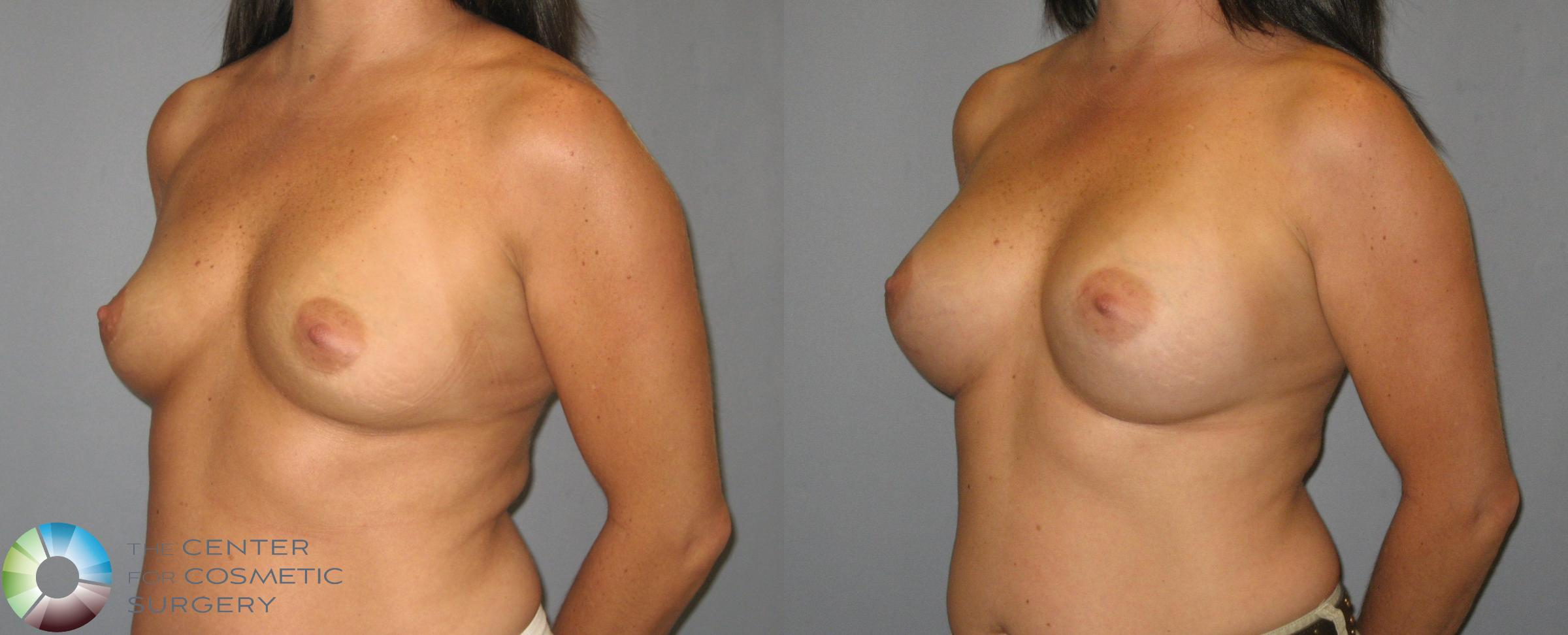 Breast Augmentation Case 419 Before & After View #2 | Golden, CO | The Center for Cosmetic Surgery