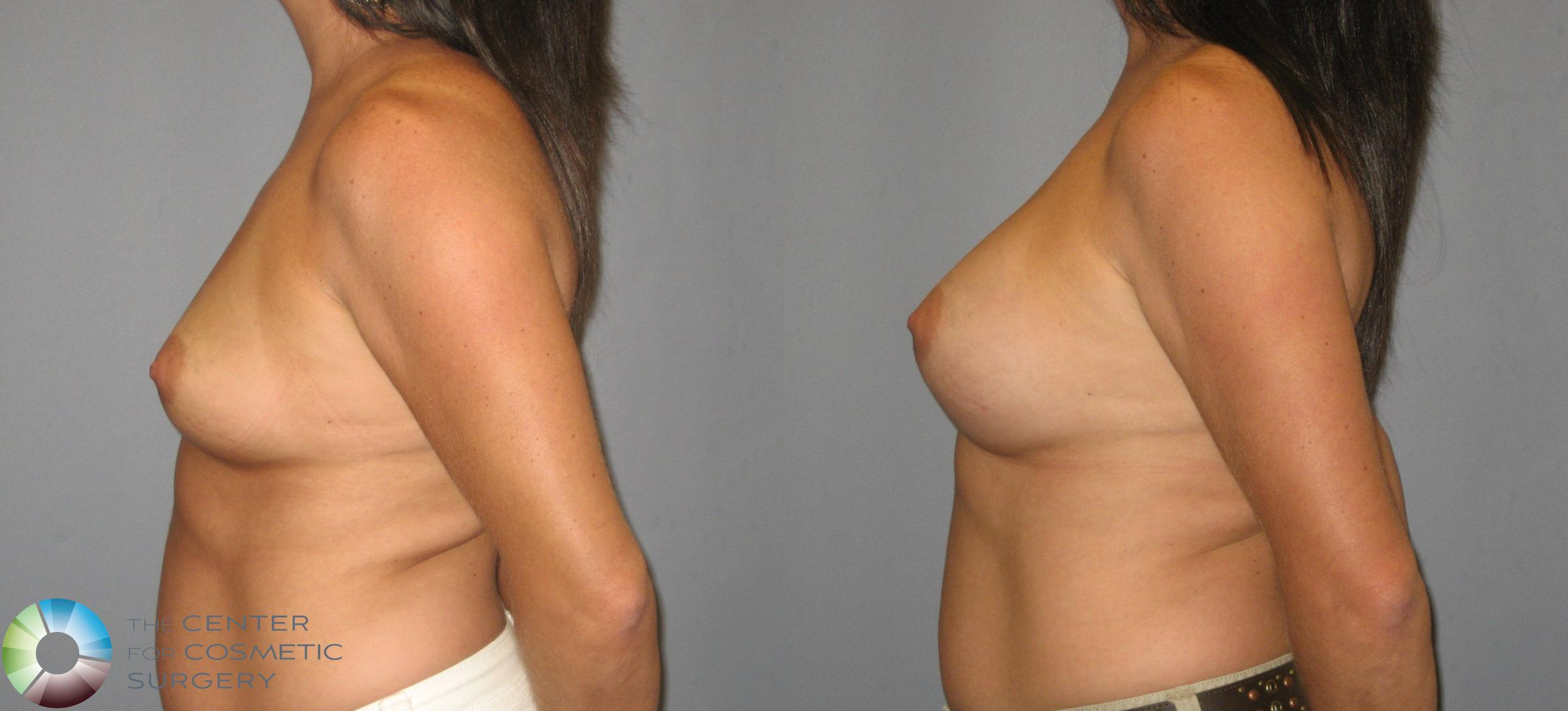 Breast Augmentation Case 419 Before & After View #3 | Golden, CO | The Center for Cosmetic Surgery