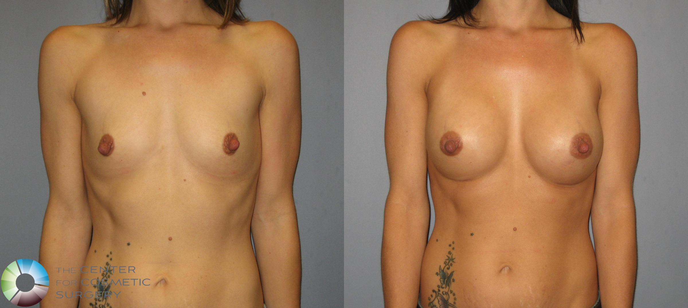 Breast Augmentation Case 423 Before & After View #1 | Golden, CO | The Center for Cosmetic Surgery