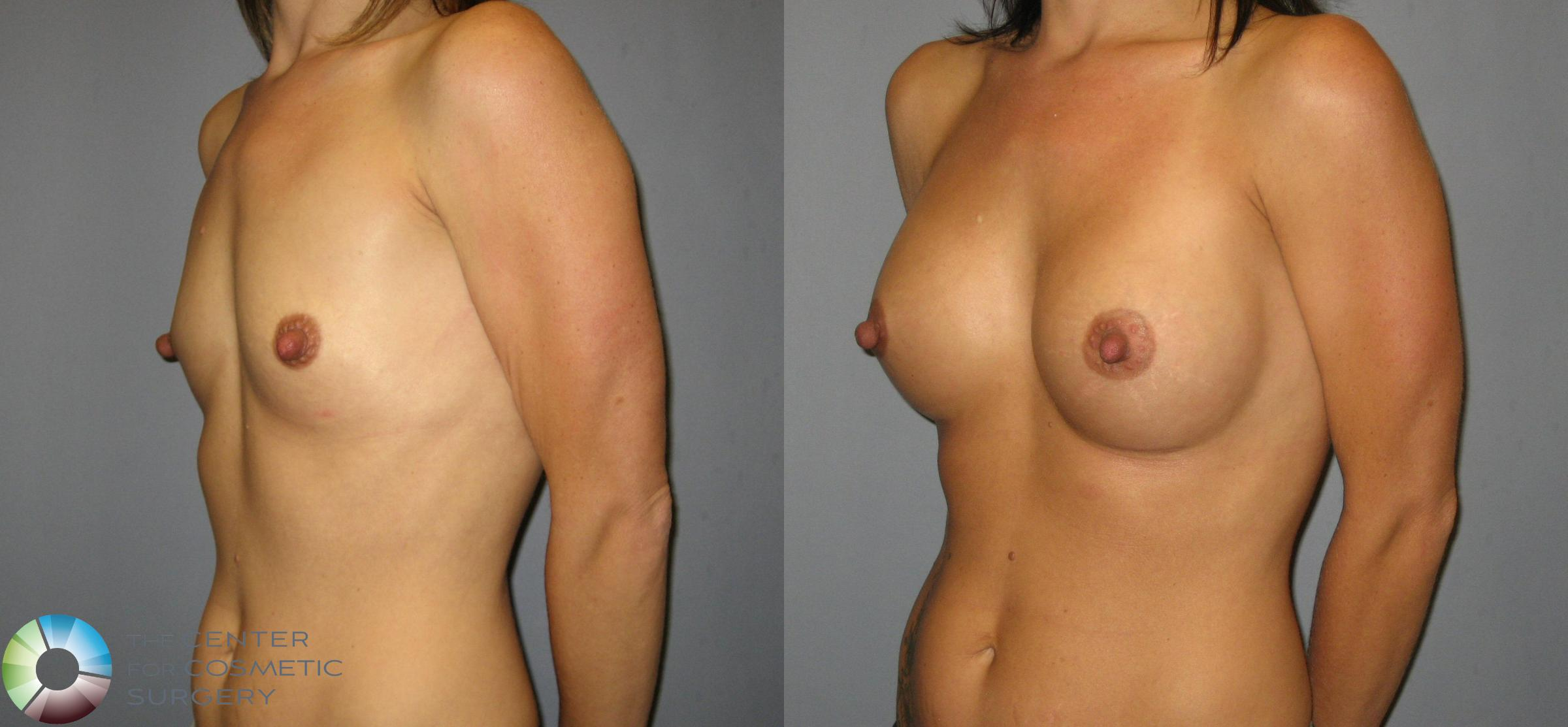 Breast Augmentation Case 423 Before & After View #2 | Golden, CO | The Center for Cosmetic Surgery