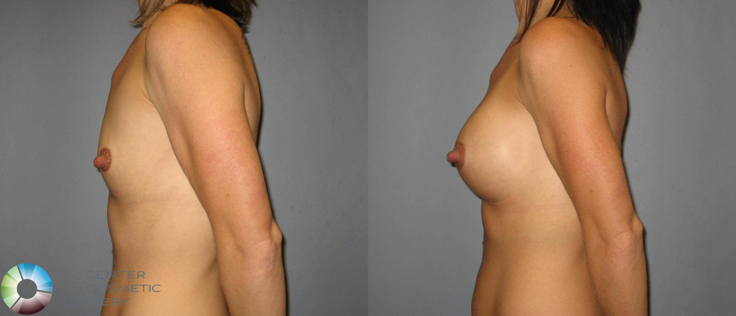 Breast Augmentation Case 423 Before & After View #3 | Golden, CO | The Center for Cosmetic Surgery