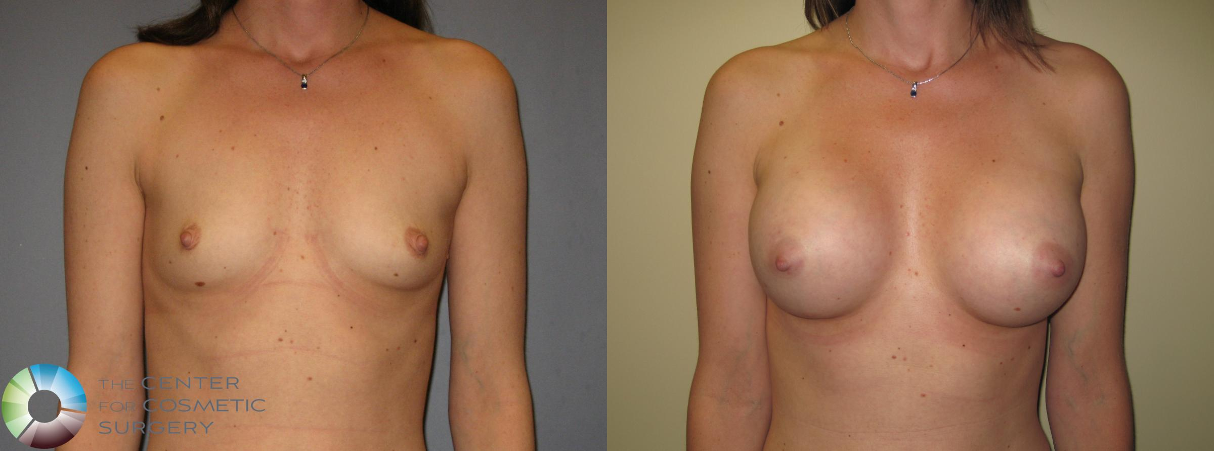 Breast Augmentation Case 424 Before & After View #1 | Golden, CO | The Center for Cosmetic Surgery