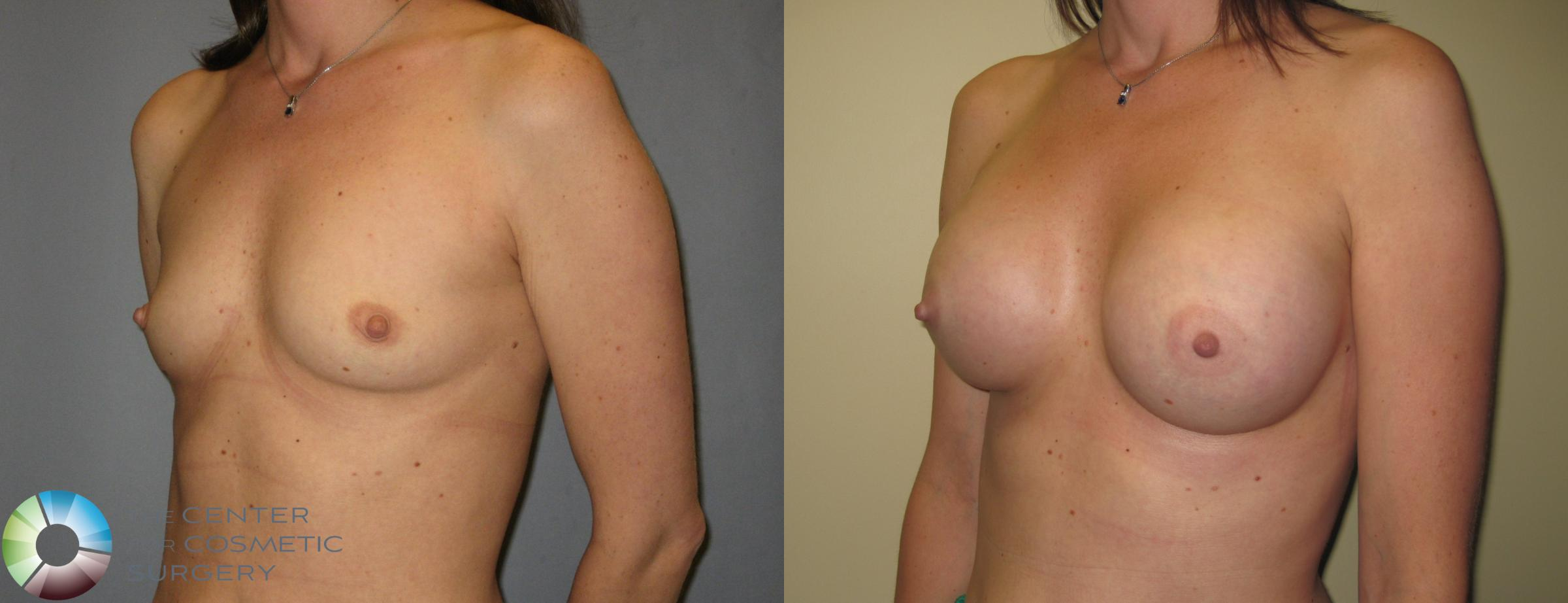 Breast Augmentation Case 424 Before & After View #2 | Golden, CO | The Center for Cosmetic Surgery