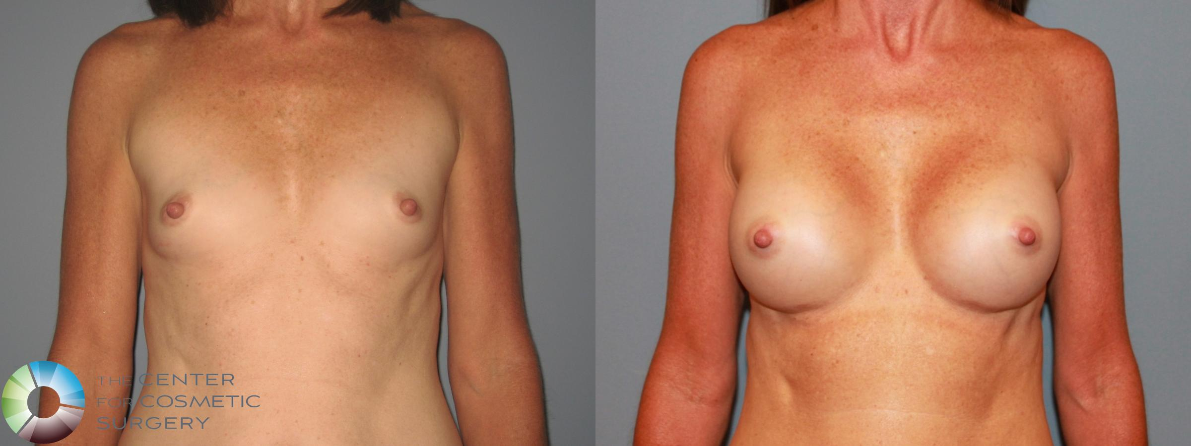 Breast Augmentation Case 471 Before & After View #1 | Golden, CO | The Center for Cosmetic Surgery