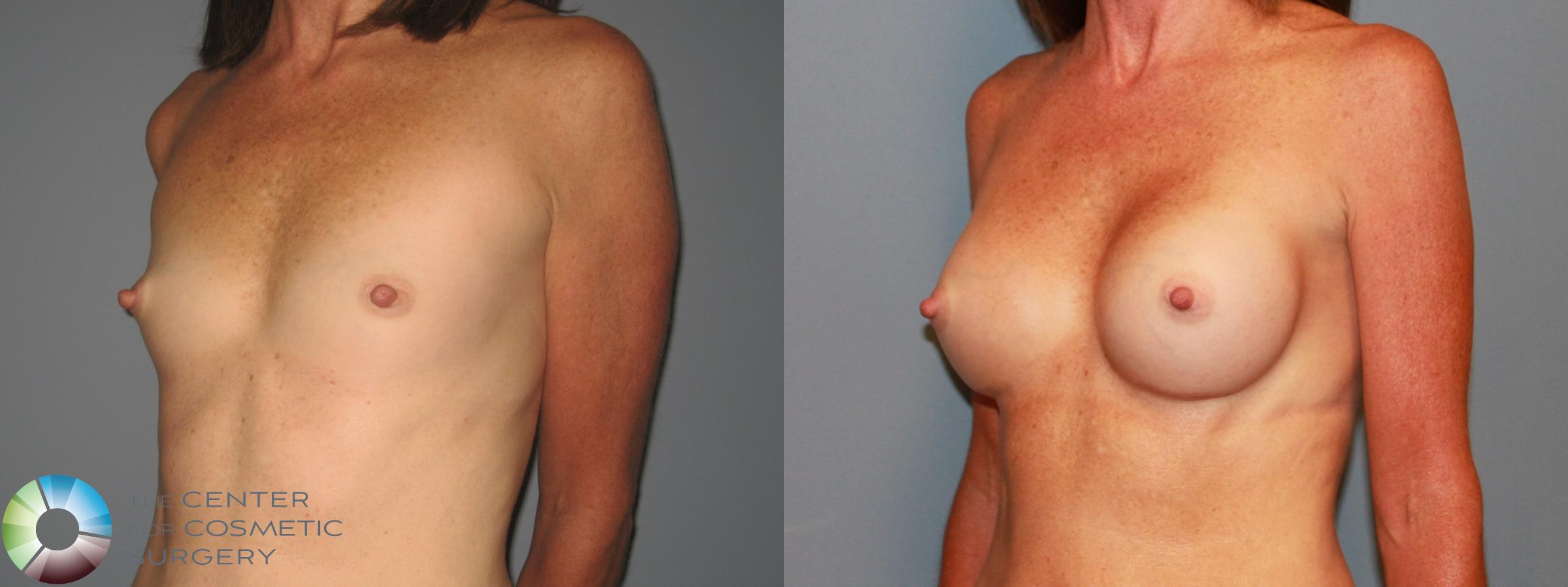 Breast Augmentation Case 471 Before & After View #2 | Golden, CO | The Center for Cosmetic Surgery