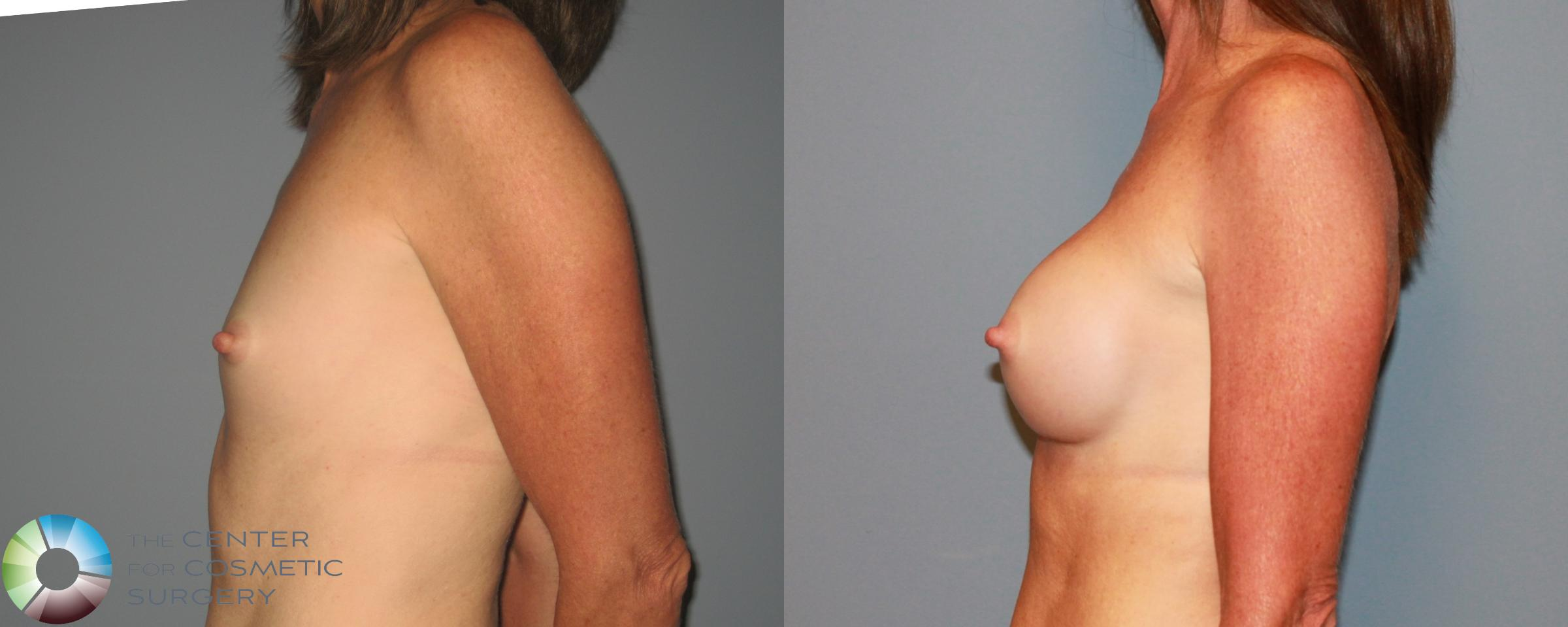 Breast Augmentation Case 471 Before & After View #3 | Golden, CO | The Center for Cosmetic Surgery