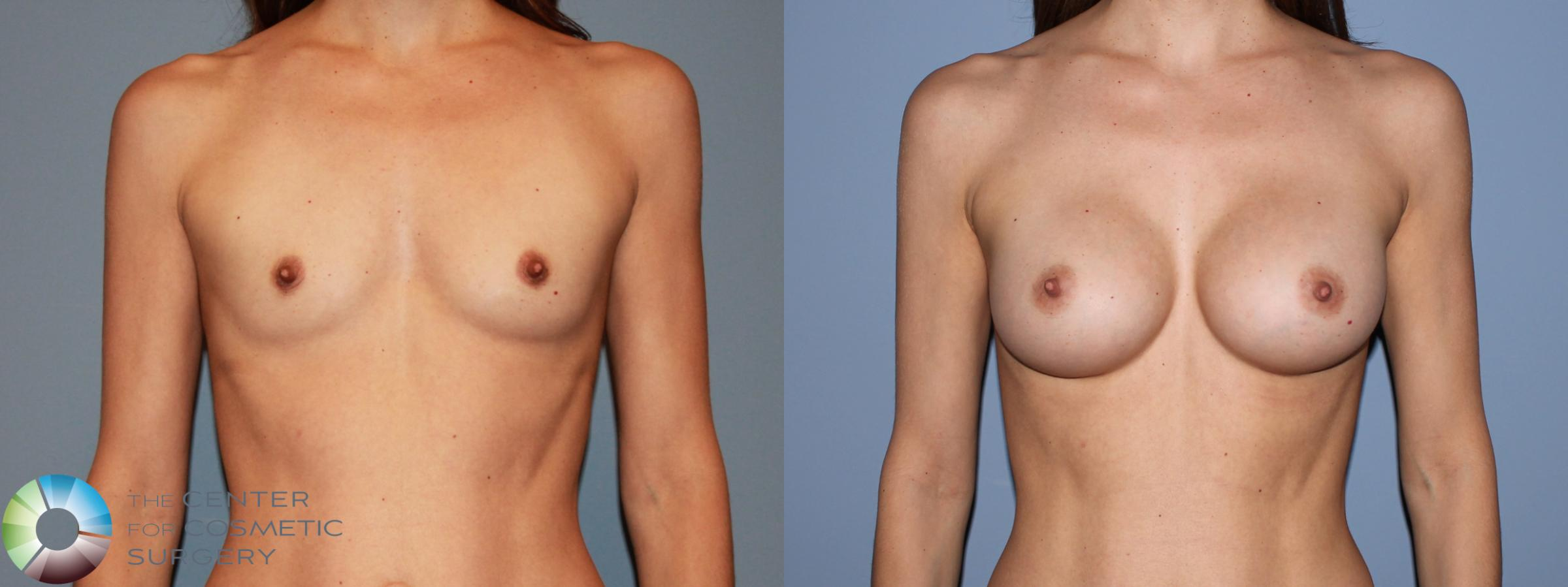 Breast Augmentation Case 481 Before & After View #1 | Golden, CO | The Center for Cosmetic Surgery