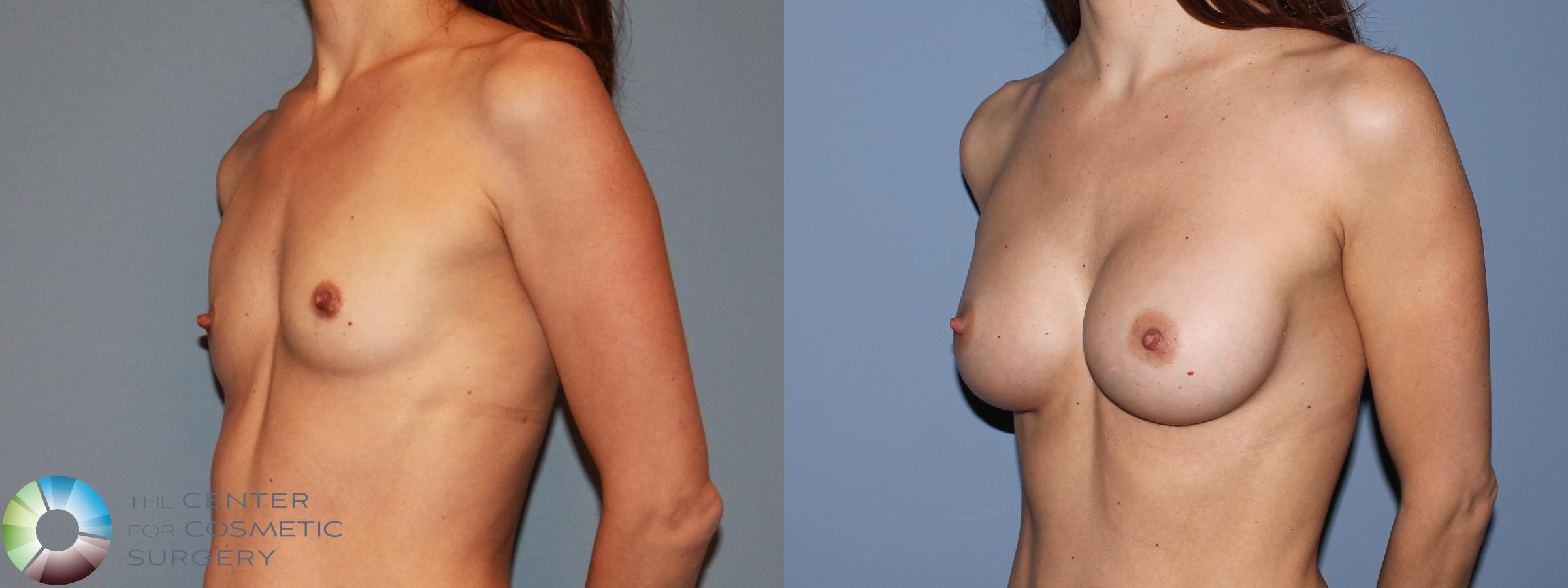 Breast Augmentation Case 481 Before & After View #2 | Golden, CO | The Center for Cosmetic Surgery