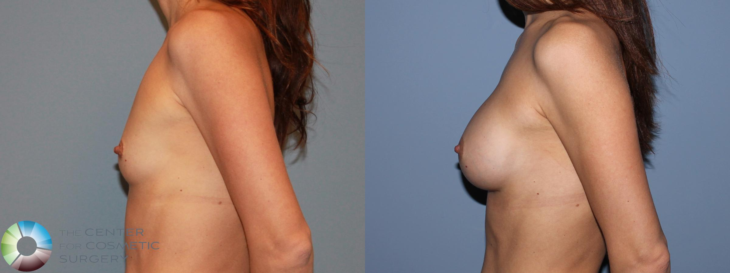 Breast Augmentation Case 481 Before & After View #3 | Golden, CO | The Center for Cosmetic Surgery