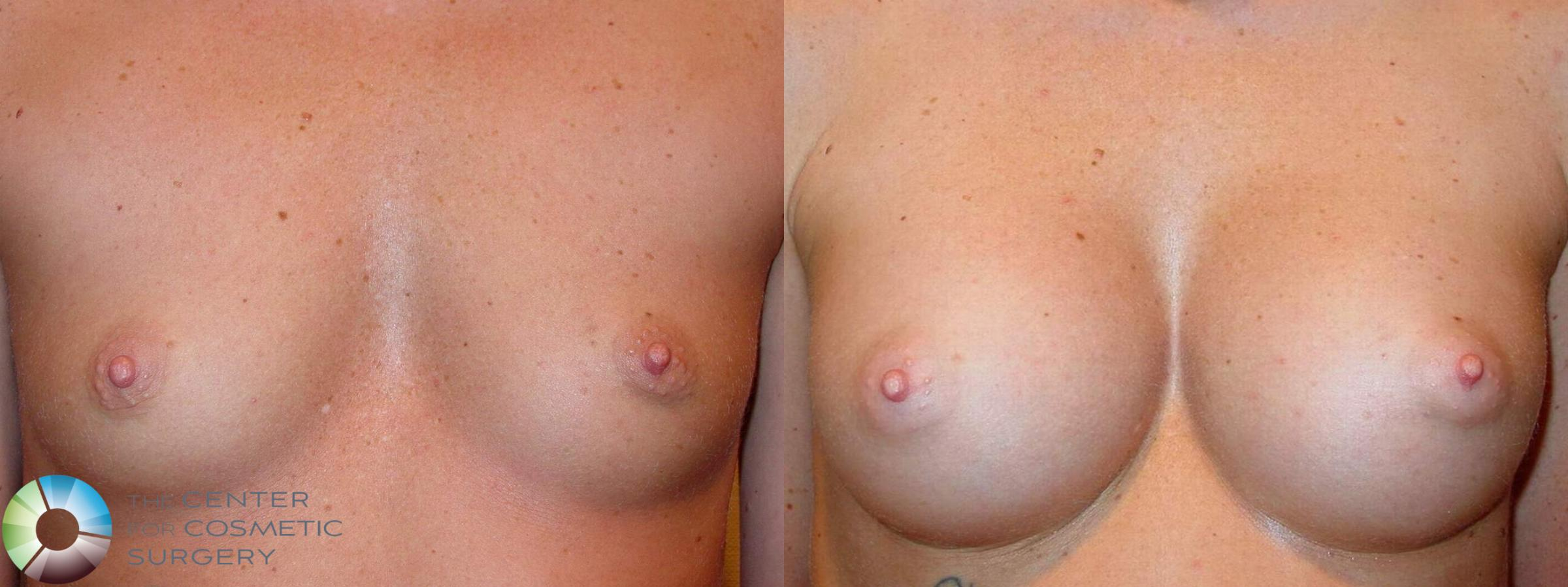 Breast Augmentation Case 512 Before & After View #1 | Golden, CO | The Center for Cosmetic Surgery