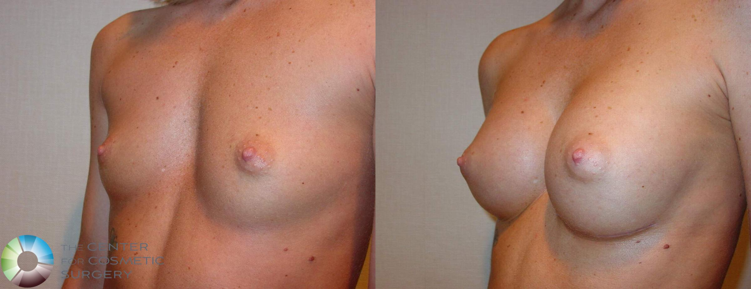 Breast Augmentation Case 512 Before & After View #2 | Golden, CO | The Center for Cosmetic Surgery