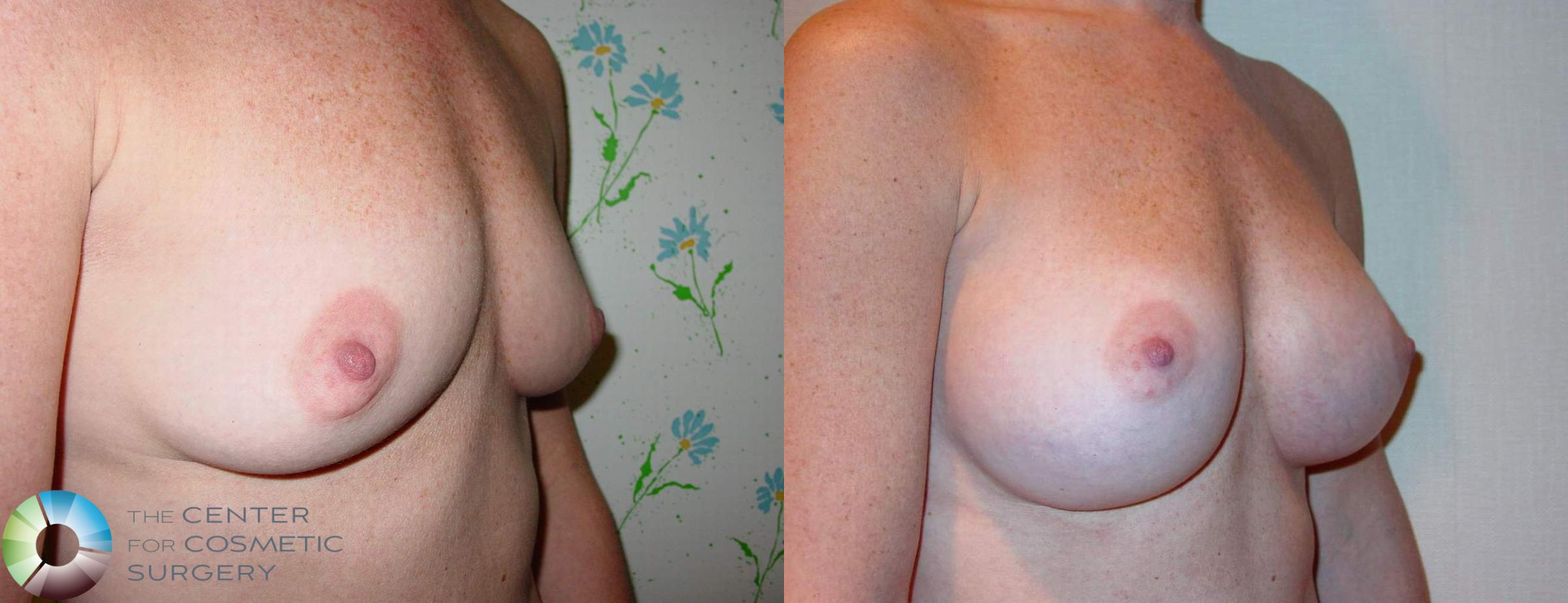 Breast Augmentation Case 513 Before & After View #1 | Golden, CO | The Center for Cosmetic Surgery