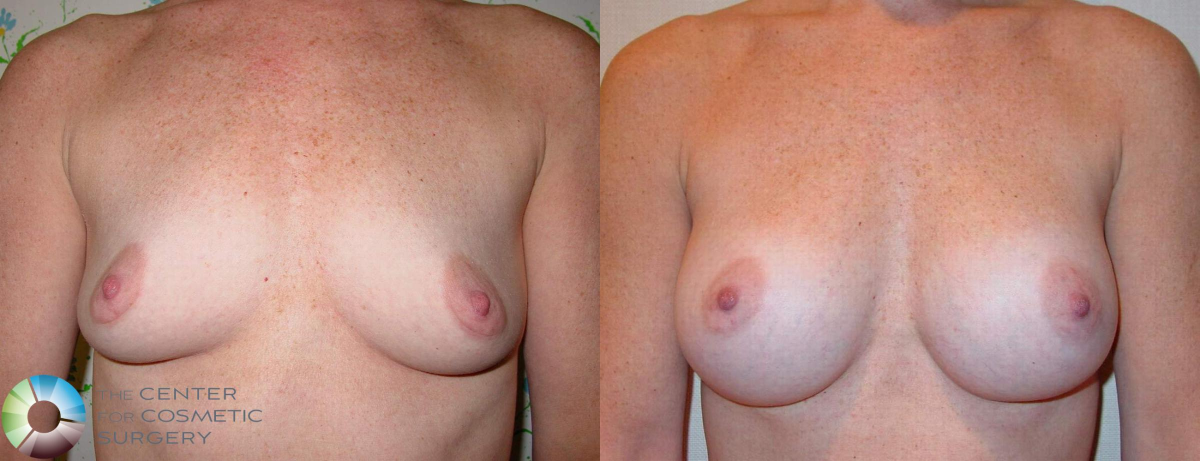 Breast Augmentation Case 513 Before & After View #3 | Golden, CO | The Center for Cosmetic Surgery