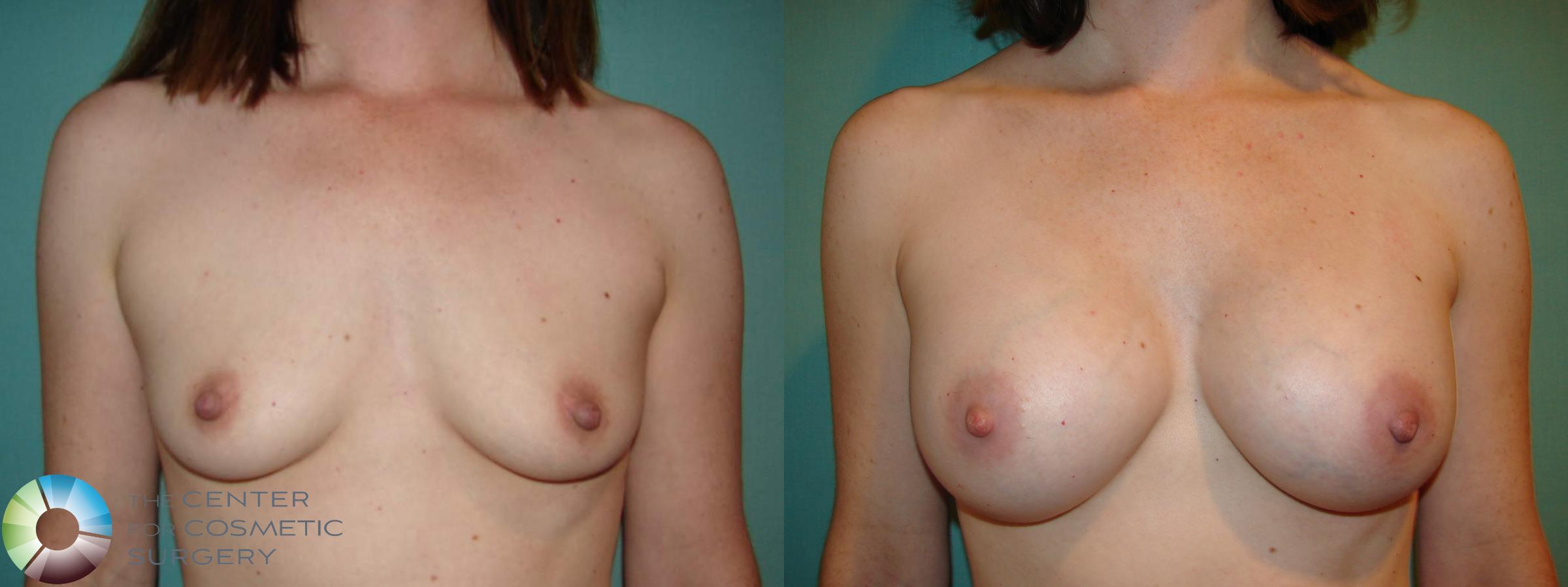 Breast Augmentation Case 529 Before & After View #1 | Golden, CO | The Center for Cosmetic Surgery