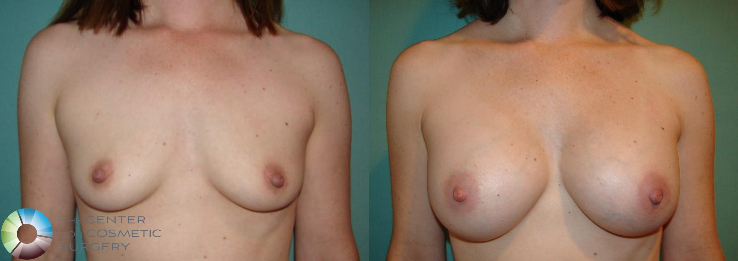 Breast Augmentation Case 529 Before & After View #2 | Golden, CO | The Center for Cosmetic Surgery