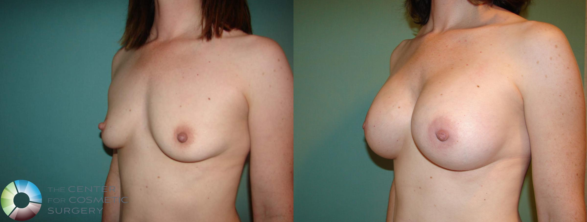 Breast Augmentation Case 529 Before & After View #3 | Golden, CO | The Center for Cosmetic Surgery