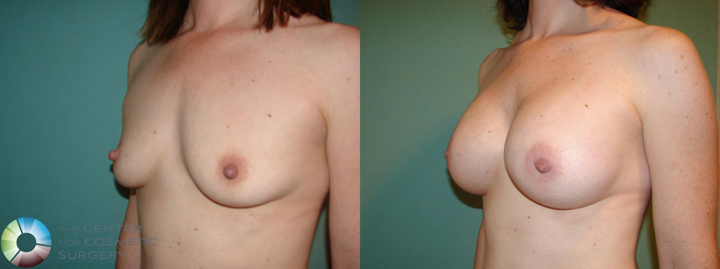 Breast Augmentation Case 529 Before & After View #5 | Golden, CO | The Center for Cosmetic Surgery