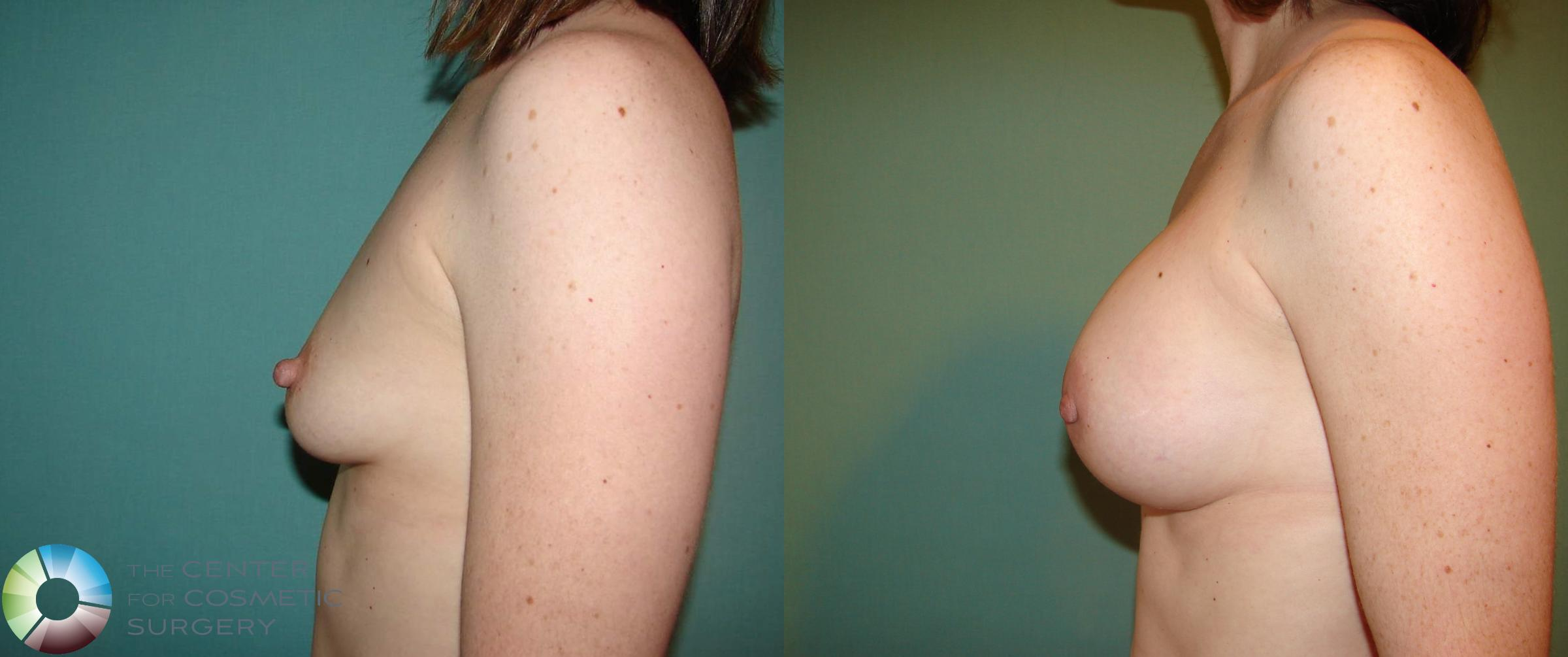 Breast Augmentation Case 529 Before & After View #7 | Golden, CO | The Center for Cosmetic Surgery