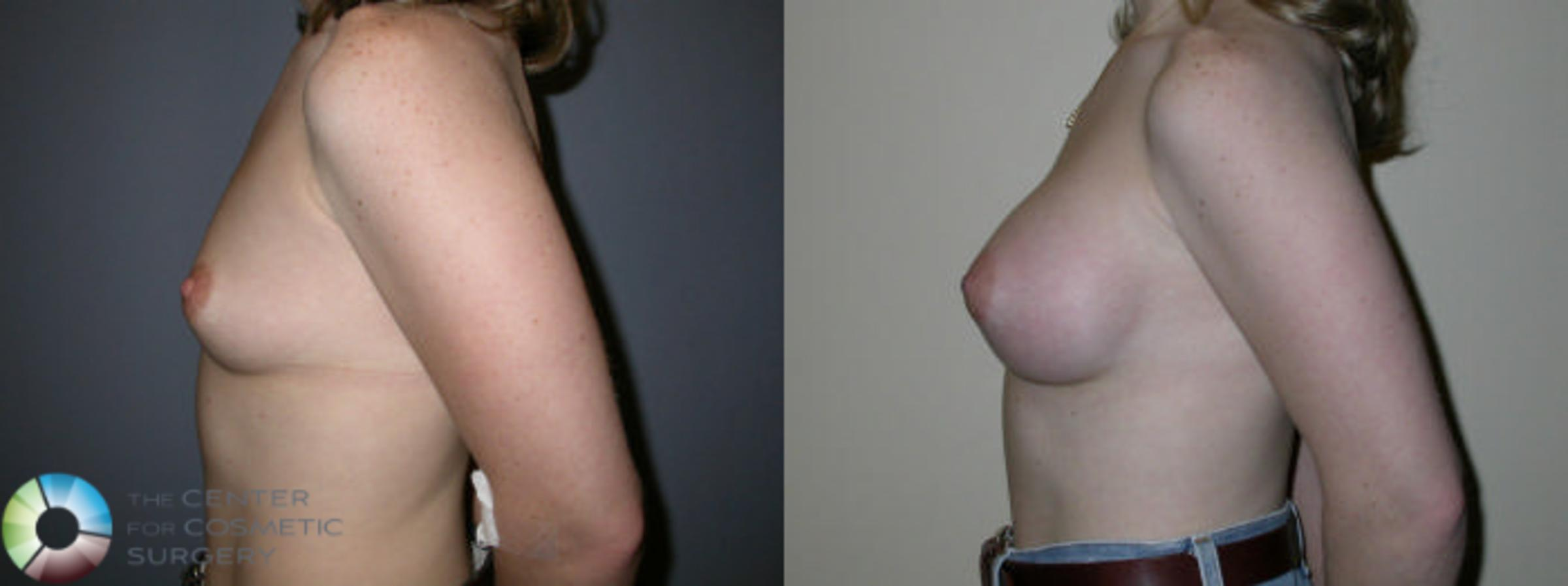 Breast Augmentation Case 63 Before & After View #2 | Golden, CO | The Center for Cosmetic Surgery