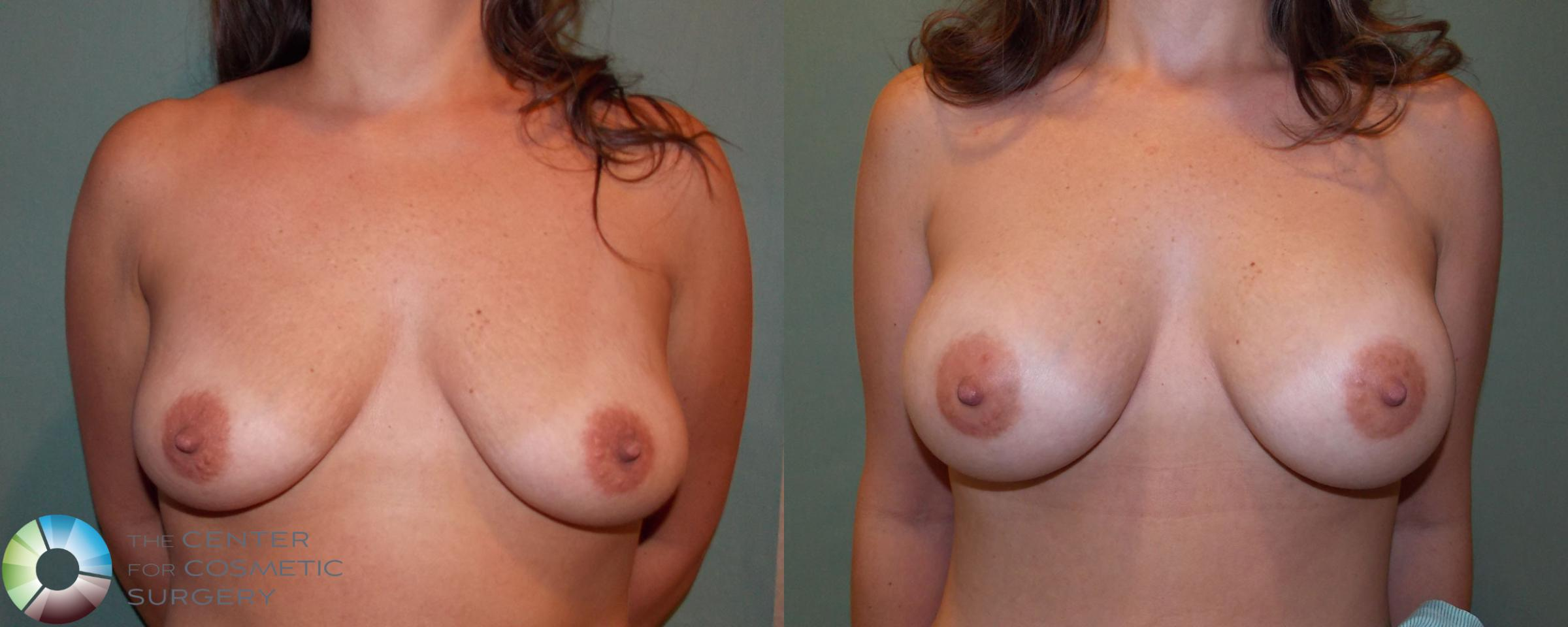 Breast Augmentation Case 682 Before & After View #1 | Golden, CO | The Center for Cosmetic Surgery