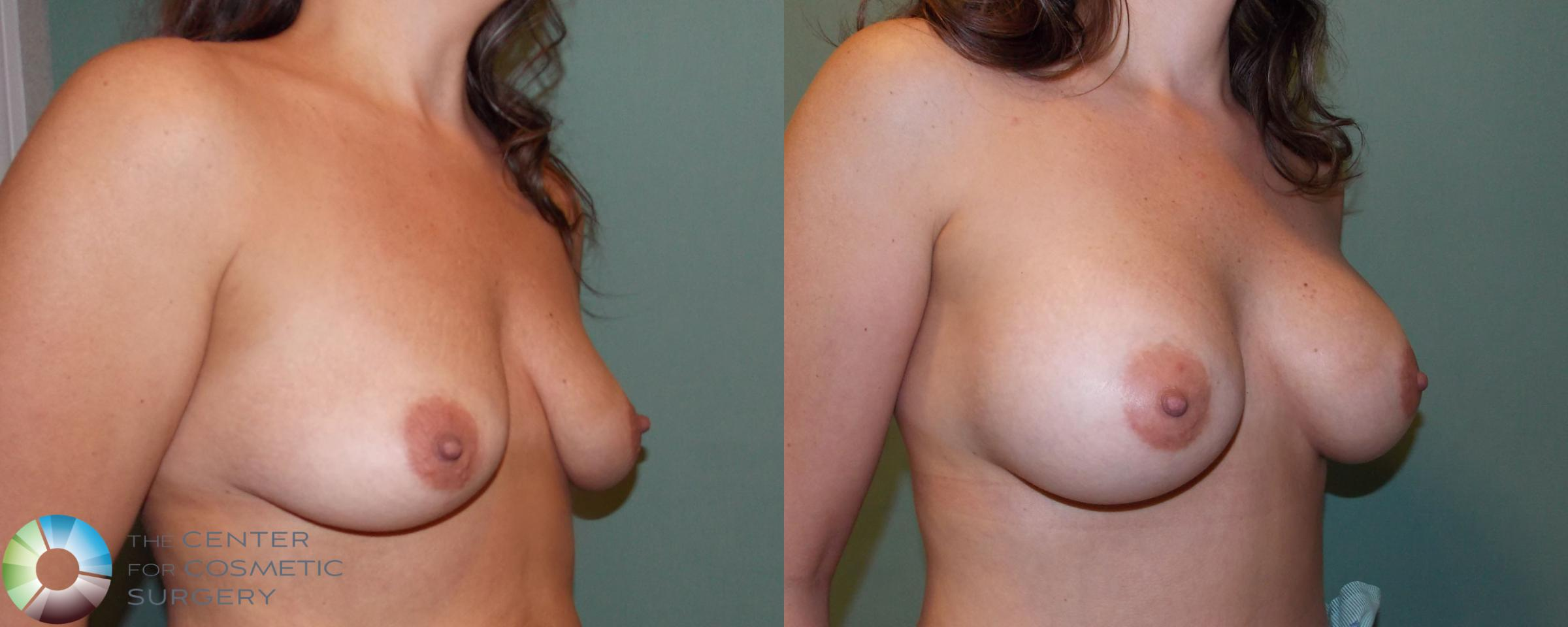 Breast Augmentation Case 682 Before & After View #2 | Golden, CO | The Center for Cosmetic Surgery