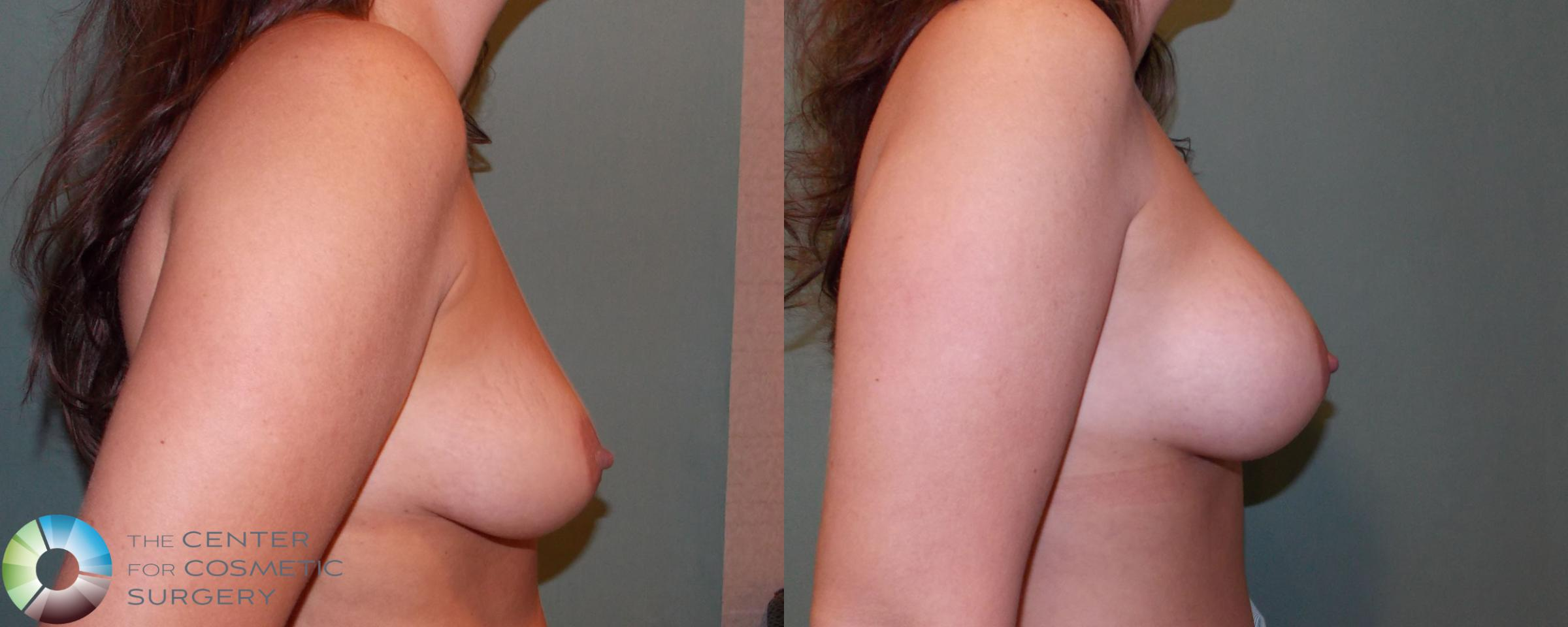 Breast Augmentation Case 682 Before & After View #3 | Golden, CO | The Center for Cosmetic Surgery