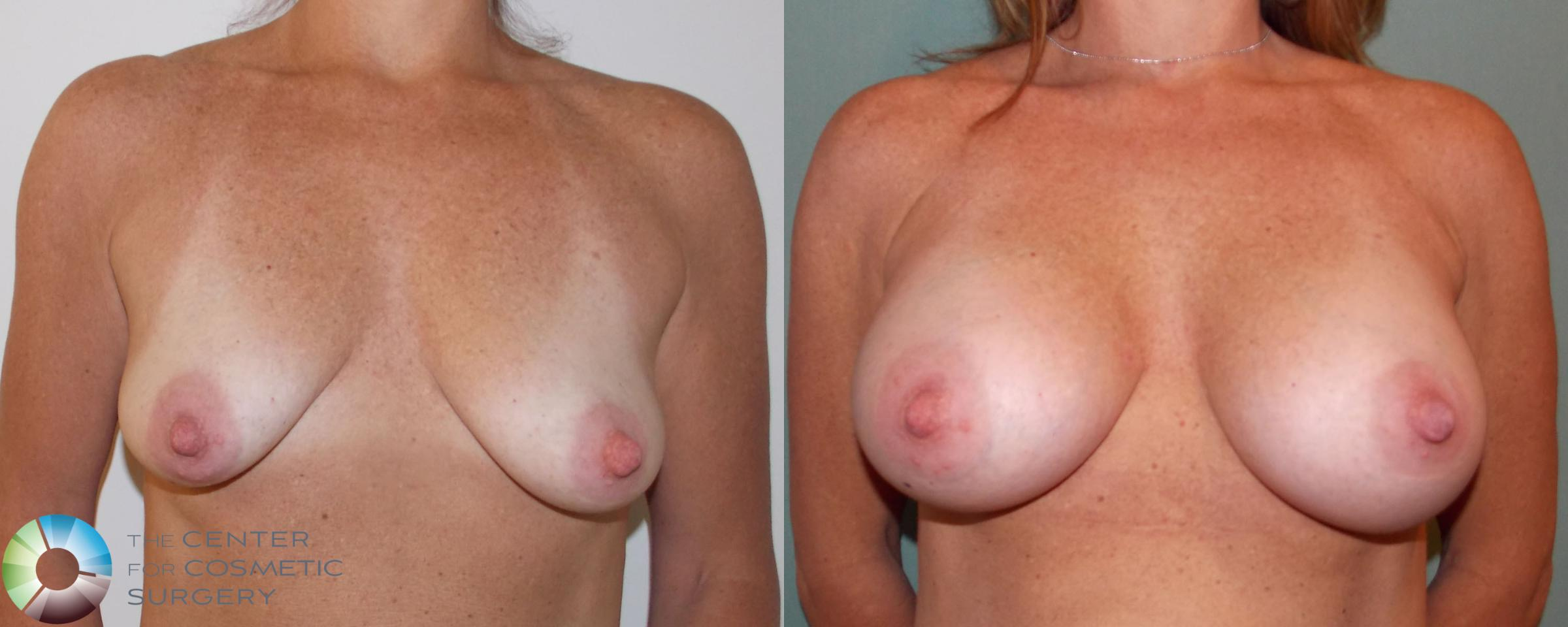 Breast Augmentation Case 696 Before & After View #1 | Golden, CO | The Center for Cosmetic Surgery
