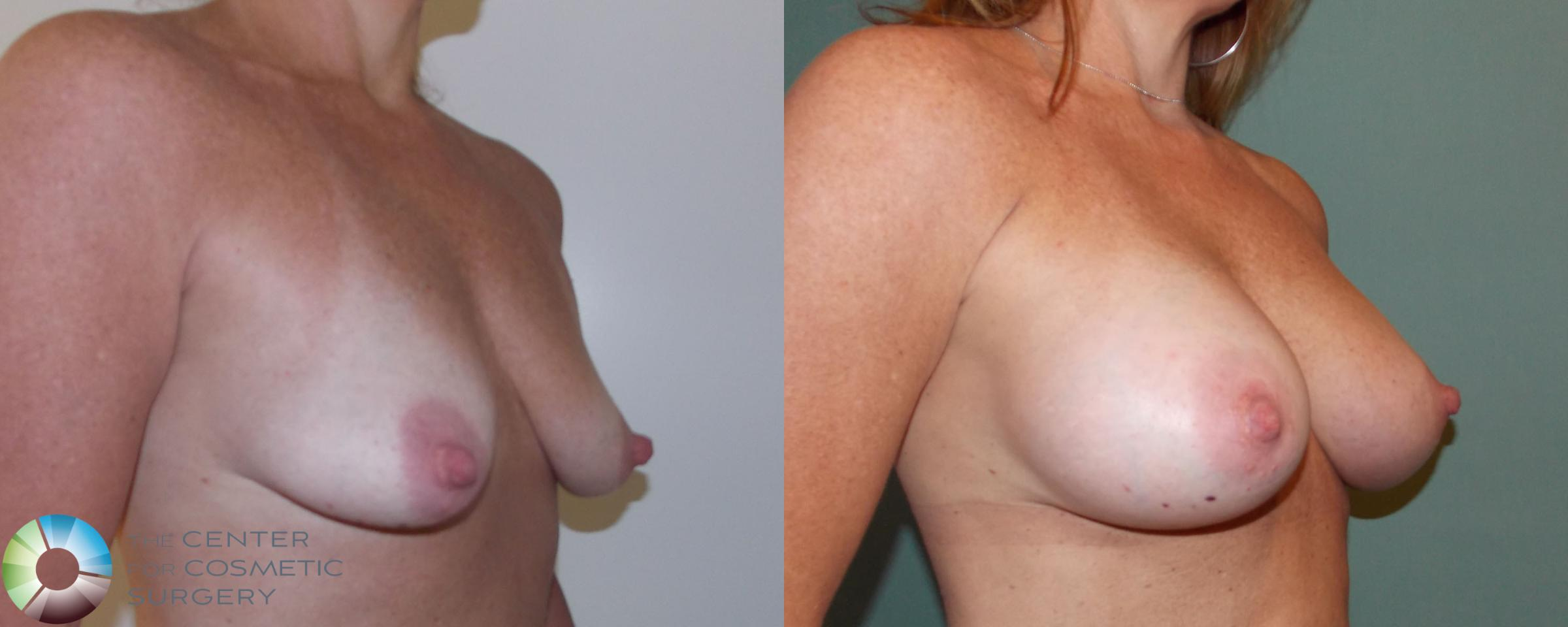 Breast Augmentation Case 696 Before & After View #2 | Golden, CO | The Center for Cosmetic Surgery
