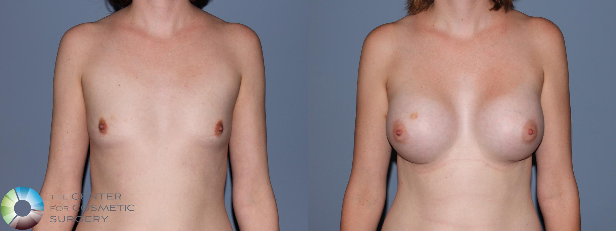 Breast Augmentation Case 707 Before & After View #1 | Golden, CO | The Center for Cosmetic Surgery