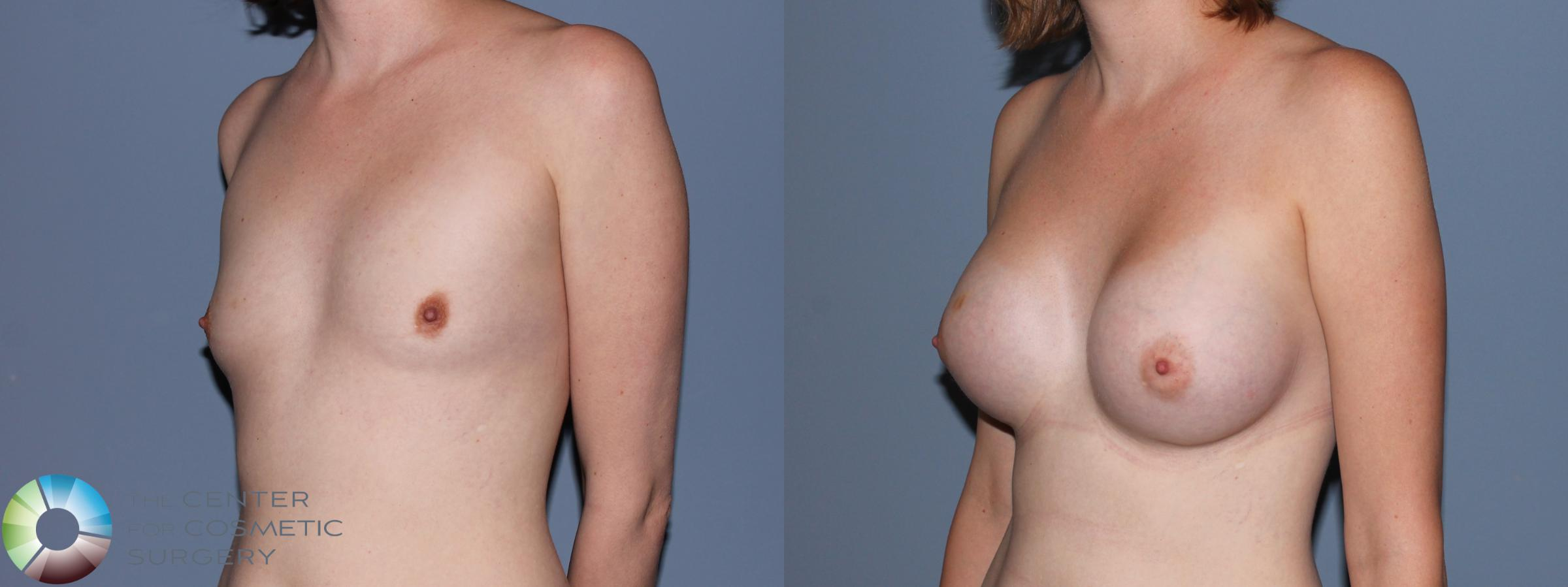 Breast Augmentation Case 707 Before & After View #2 | Golden, CO | The Center for Cosmetic Surgery
