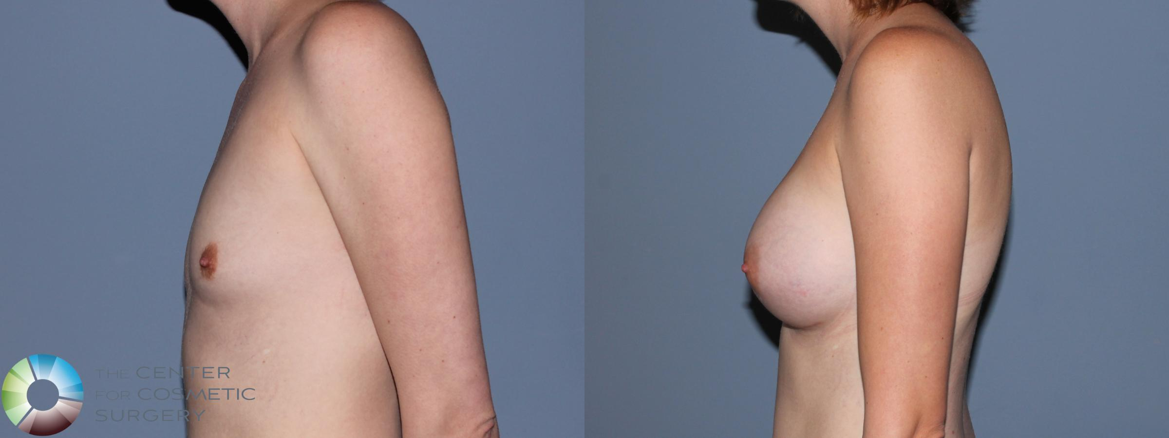 Breast Augmentation Case 707 Before & After View #3 | Golden, CO | The Center for Cosmetic Surgery
