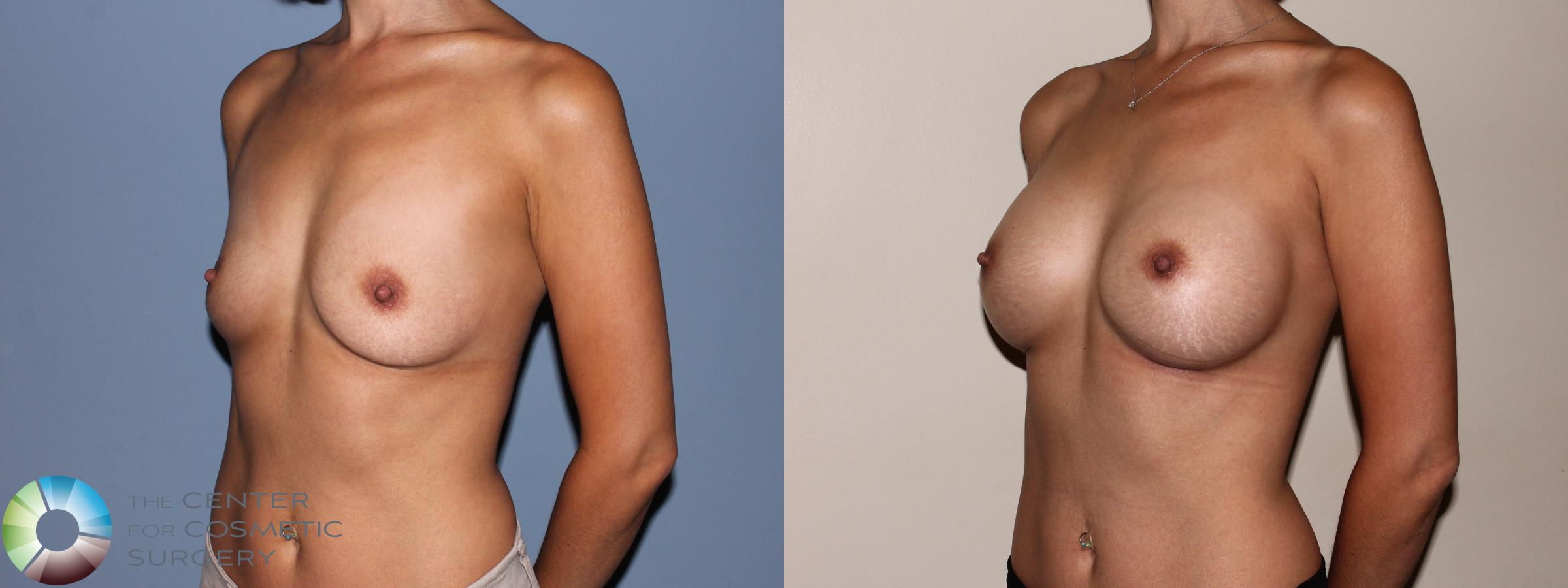 Breast Augmentation Case 709 Before & After View #2 | Golden, CO | The Center for Cosmetic Surgery