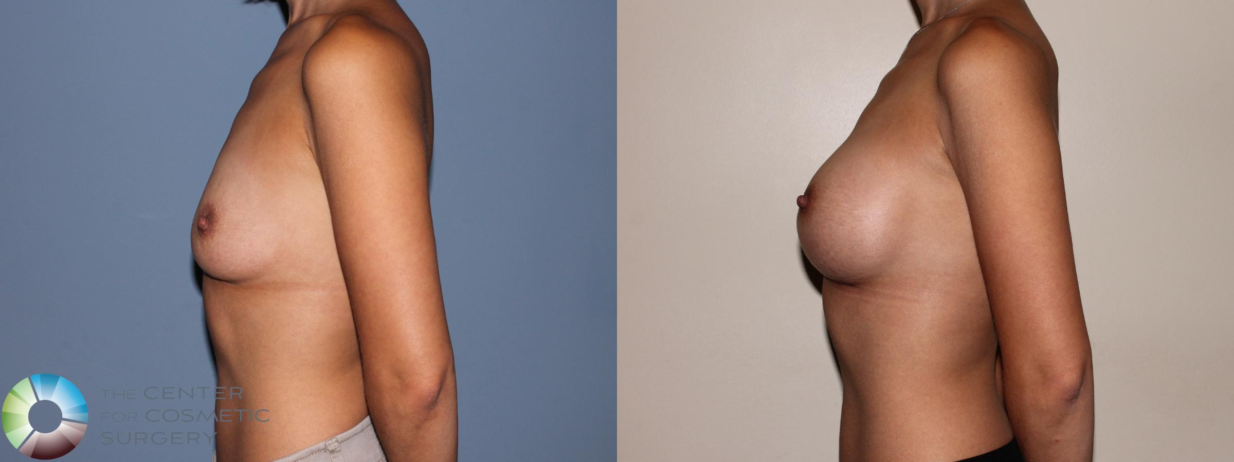 Breast Augmentation Case 709 Before & After View #3 | Golden, CO | The Center for Cosmetic Surgery