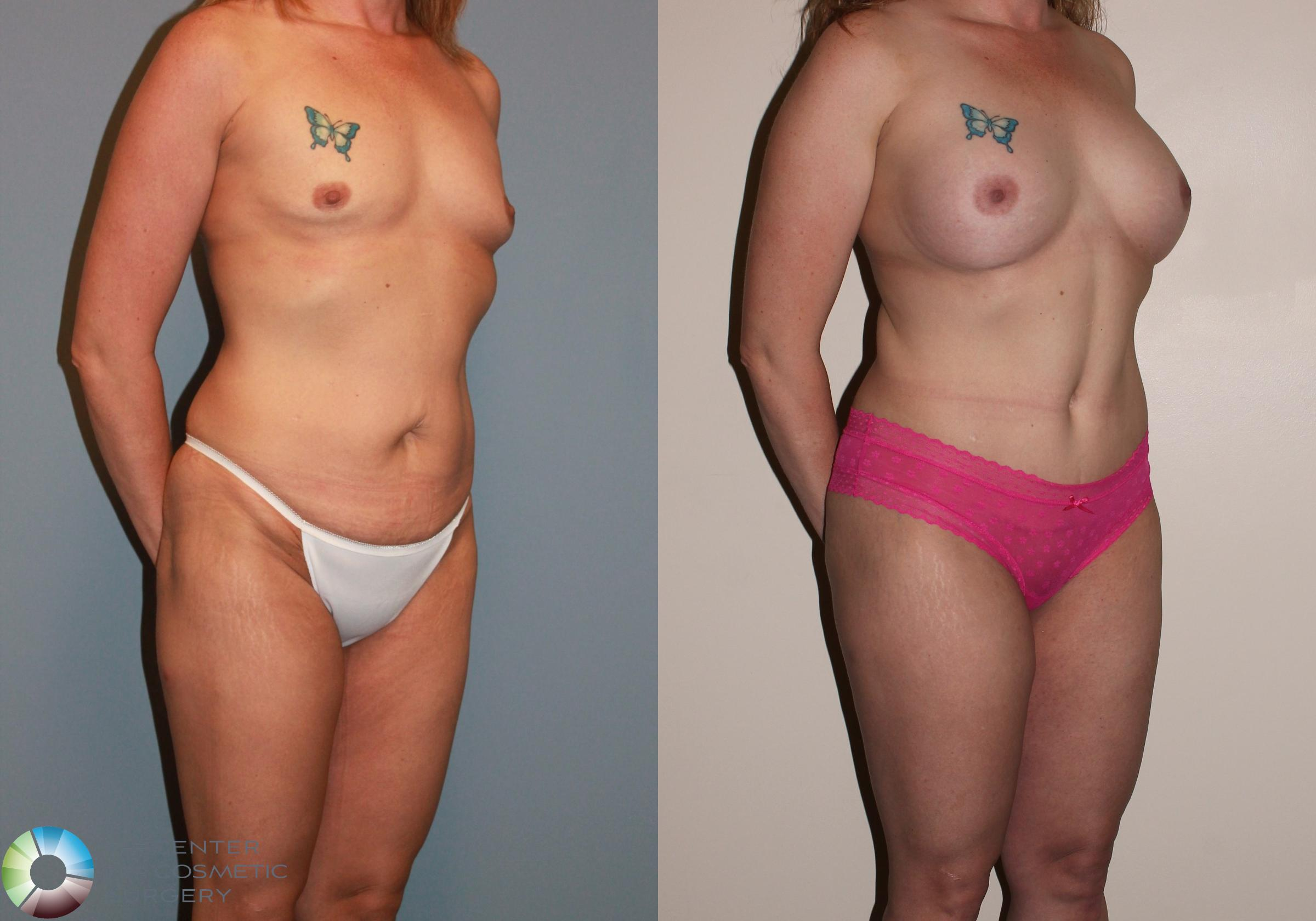 Breast Augmentation Case 717 Before & After View #2 | Golden, CO | The Center for Cosmetic Surgery