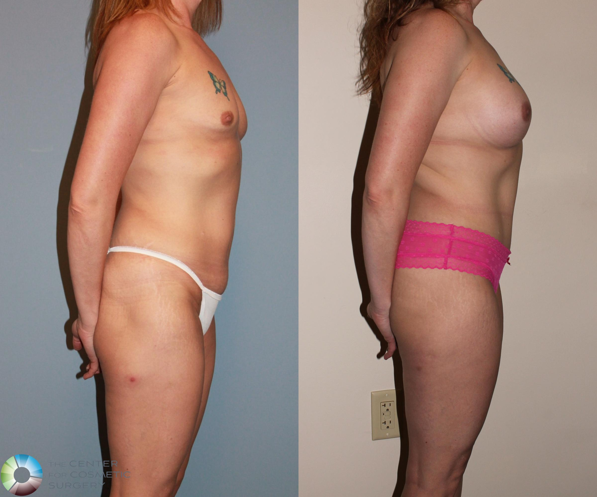 Breast Augmentation Case 717 Before & After View #3 | Golden, CO | The Center for Cosmetic Surgery