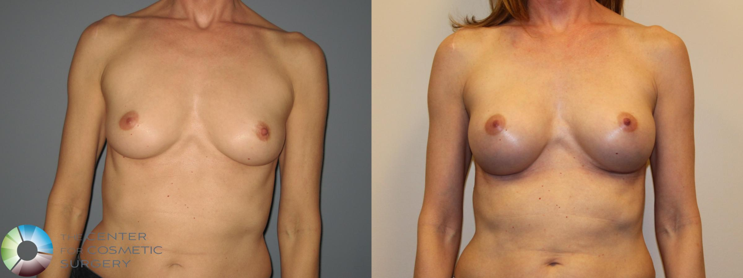 Breast Augmentation Case 718 Before & After View #1 | Golden, CO | The Center for Cosmetic Surgery