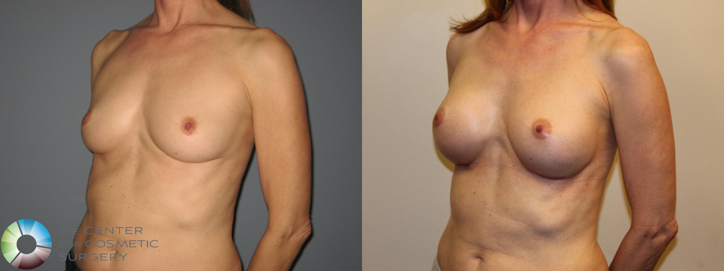 Breast Augmentation Case 718 Before & After View #2 | Golden, CO | The Center for Cosmetic Surgery