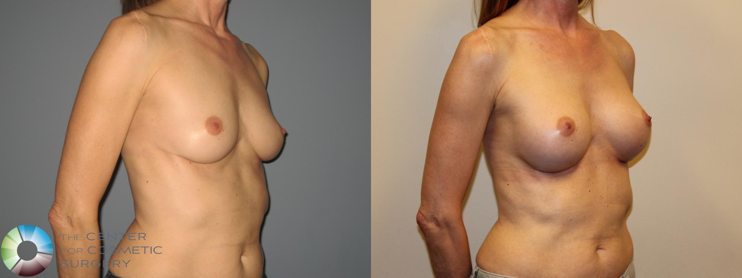 Breast Augmentation Case 718 Before & After View #3 | Golden, CO | The Center for Cosmetic Surgery