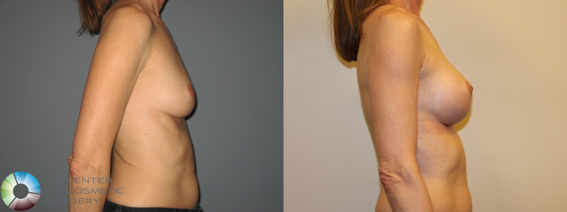 Breast Augmentation Case 718 Before & After View #4 | Golden, CO | The Center for Cosmetic Surgery