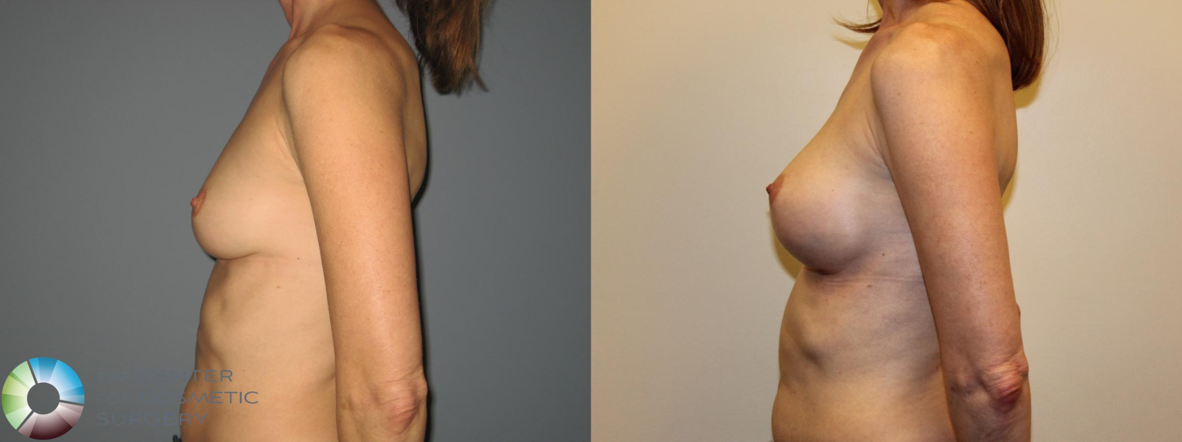 Breast Augmentation Case 718 Before & After View #5 | Golden, CO | The Center for Cosmetic Surgery